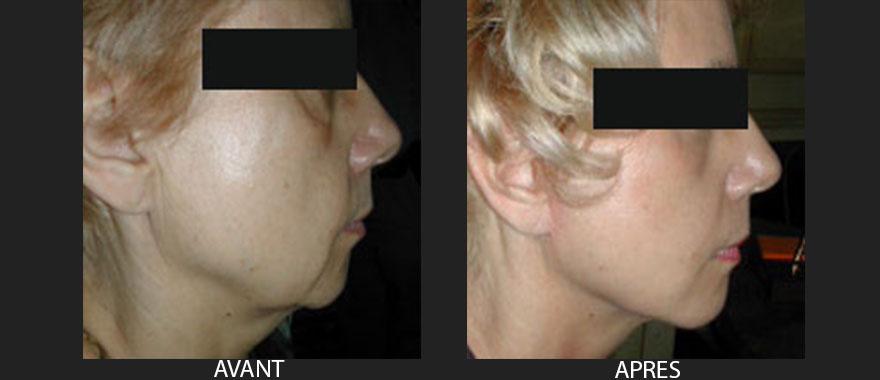 chirurgie-du-visage-lifting-avant-apres-1