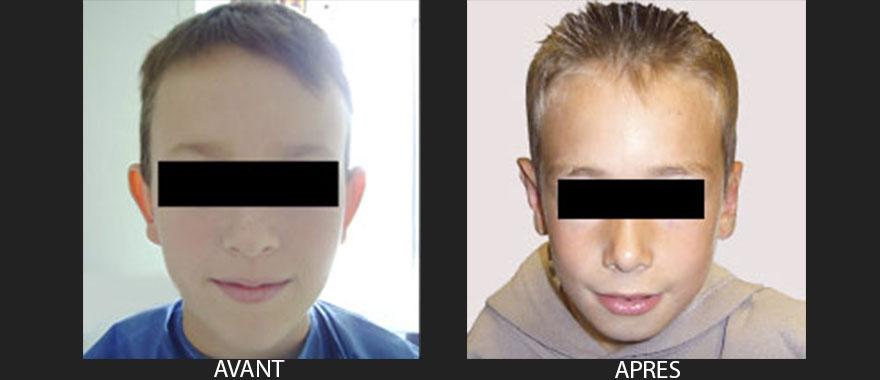 chirurgie-esthetique-des-oreilles-avant-apres-1
