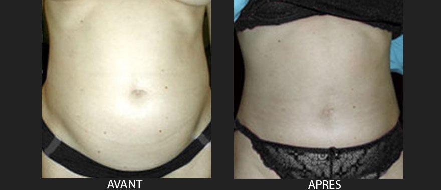 chirurgie-esthetique-du-ventre-plastie-abdominale-avant-apres-1