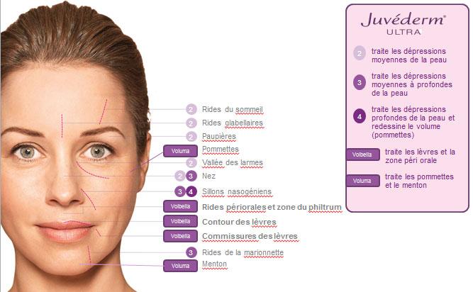 La gamme de produits Juvéderm - Dr Danon - Paris